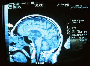 brain injuries in North Carolina